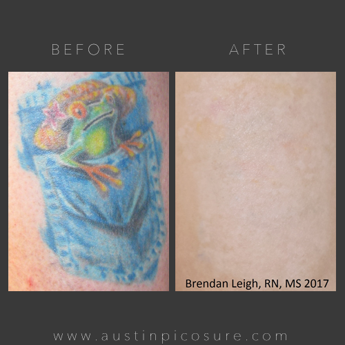 PicoSure™ Tattoo Removal Treatment | Austin Med Spa